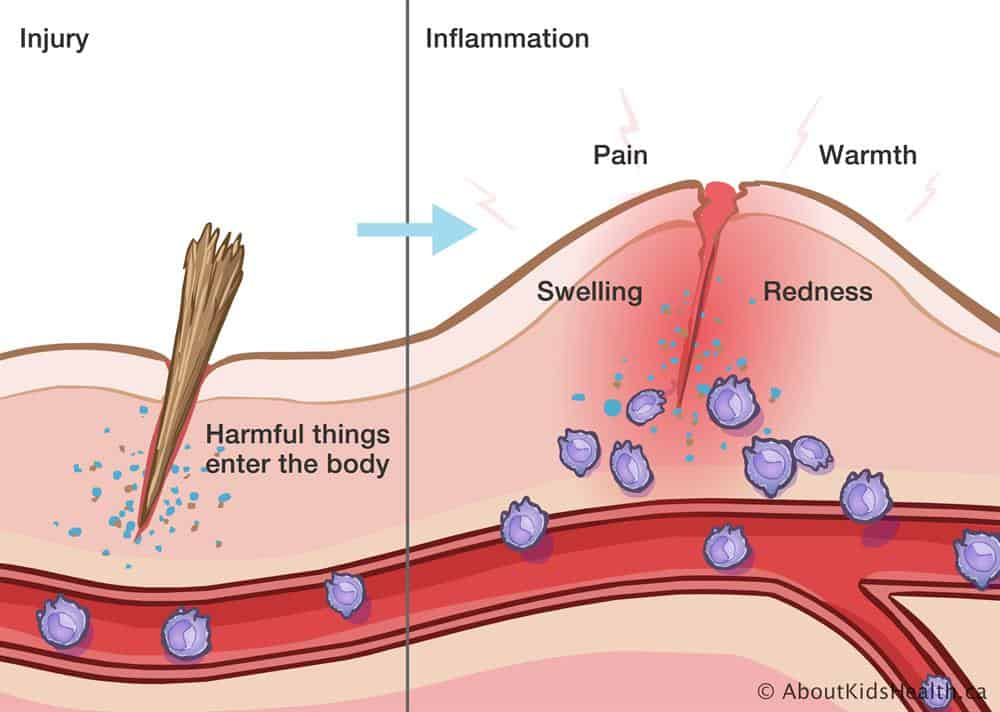 Inflammation and Injury