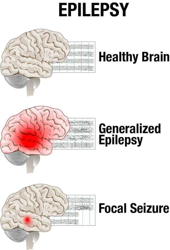 Types of Epilepsy Seizures